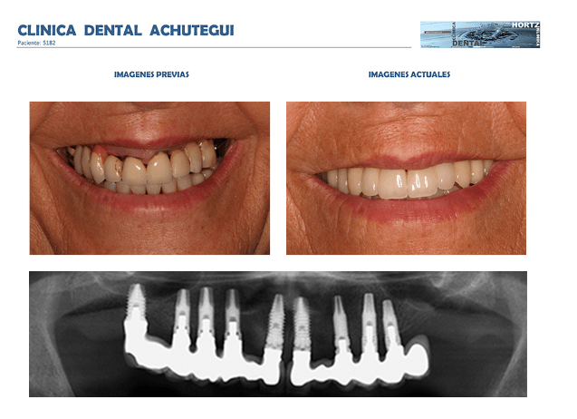 Achútegui Dental Implantes