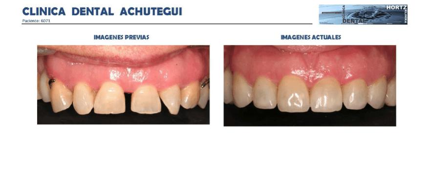 Achútegui Dental resultados paciente 10