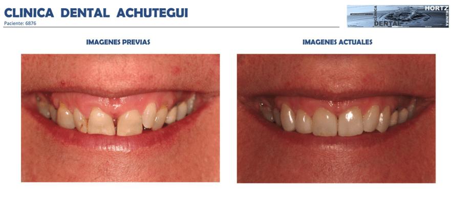 Achútegui Dental resultados paciente 5