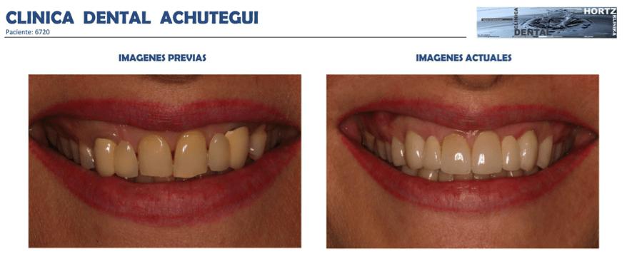 Achútegui Dental resultados paciente 6