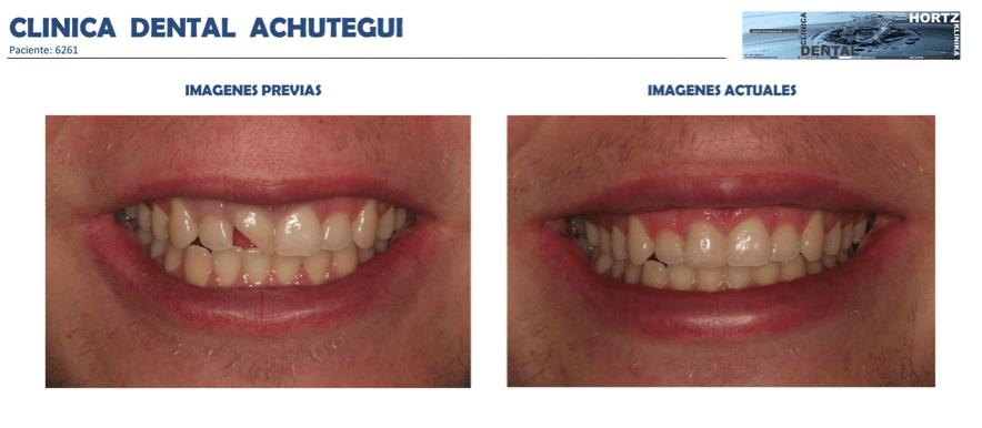 Achútegui Dental resultados paciente 8