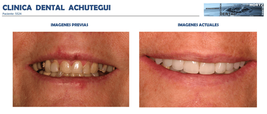 Achútegui Dental resultados paciente 9