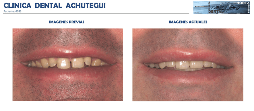 Achútegui Dental resultaos pacientes 2