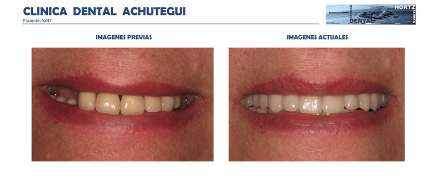 Achútegui Dental resultados paciente 3