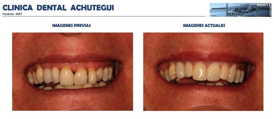 Achútegui Dental resultados paciente 7