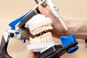 1 Rehabilitación oral