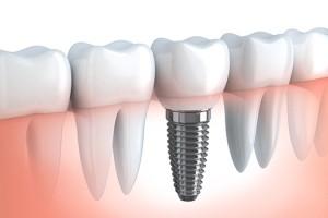 3 Implantes Dentales