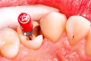 6 Endodoncia